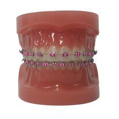 Customize Your Colors - North Portland Orthodontics - Oregon - Dr. Braces Tips, Braces Off, Dental Braces, Teeth Braces, Light Blue Braces, Pink Braces, Cute Girls With Braces, Cute Braces Colors, Best Braid Styles