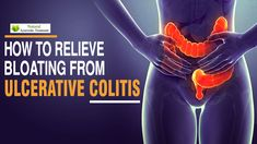 You can get these symptoms too like a in the and rapid pulse and severe pain in the needs to be tackled in time and we will discuss matters to remove bloating in a way Health Articles, Health Advice, Natural Treatments, Natural Remedies, Healthy Tips, Healthy Recipes, Relieve Bloating, Health Dinner, Ulcerative Colitis