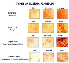 Eczema and Dry Skin Stuff on Pinterest