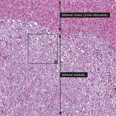 Normal: Adrenal gland - medulla (insert: 400x)