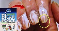 vous rêvez d'ongles solides et blancs, découvrez comment les avoir en utilisant du bicarbonate de soude... Voici, Convenience Store, Nails, Forts, Physique, Fitness, Health, Beauty, Healthy Nails