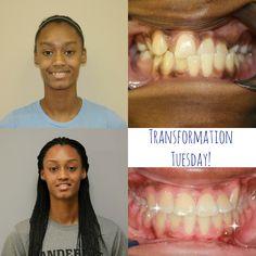 Transformation Tuesday, Braces, Breakfast, Fun, Morning Coffee, Suspenders, Dental Braces, Hilarious