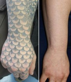 Tattoo Removal Before and After PicturesRethink the Ink Laser Tattoo ...