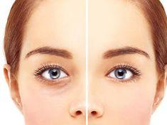 Augen jünger aussehen lassen: 5 Tipps, die wirklich helfen