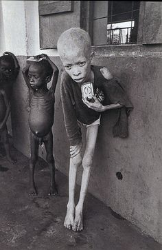 Biafra 1969 - This was taken a couple of years after Igbos, Nigeria declared themselves independent and were at war. Over one million people died in three years. This is a prime example of desensitized documentation on the affects war has on civilians. It is showing one of what, at the time, ever so surprisingly, was Nigeria's biggest killers – starvation or disease due to the way that families were put into these camps because of this African civil war.