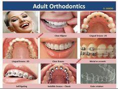 Ortodonzia negli adulti:) Staff CDS