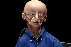 Sam Berns recently died of complications from a rare disease, progeria.  Despite spending relatively little time on this Earth, he had wisdom that some people never obtain over the course of a long life.Be uplifted by his speech, given when he was 17, containing his philosophy for happiness.  Although he is no longer with us, his inspiring attitude should live in our hearts and minds for years to come.