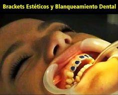 Caso Clínico: Brackets Estéticos y Blanqueamiento Dental | Odonto-TV