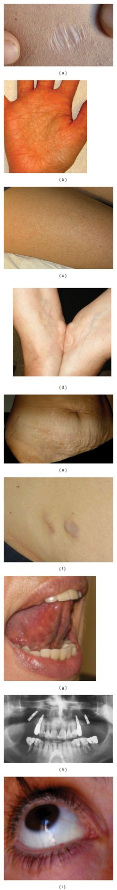 SEDh - Skin and mucosal features of EDS hypermobility type. --- Atrophic, nonpapyraceous scar (a). Accentuated crease reticulum of the palm (b). Keratosis pilaris (c). Piezogenic papules at wrists after compression (d). Extensive abdominal striae atrophicae (e). Postsurgical scar with anetoderma-like herniation of the subcutaneous fat (f). Apparent absence of the lingual frenulum (g). Radiographic orthopanoramic showing extensive tooth loss (h). Blue sclerae (i).
