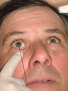 Anesthesia during perio: Maxillary injections useful for adult nonsurgical periodontal therapy - Registered Dental Hygienist