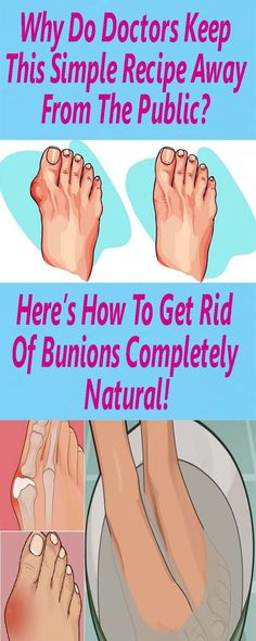 Bunions are probably common among many people. They are actually salt deposits, but also, angina, influenza, gout, bad metabolism, rheumatic infections, poor diet and long wearing uncomfortable shoes contribute to their formation. In this article