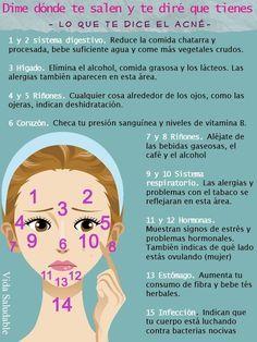 No todo se trata de tu piel, el acné también puede decirte qué está fallando en tu sistema. | 15 Infográficos para combatir el acné de una vez por todas