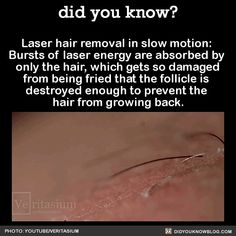 Laser hair removal in slow motion:  Bursts of laser energy are absorbed by  only the hair, which gets so damaged  from being fried that the follicle is  destroyed enough to prevent the  hair from growing back.  Source