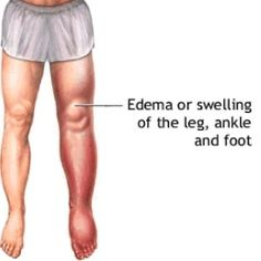 Top 6 Home Remedies For Edema