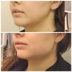 Nice jawline after medpor implants. #beautifulface #jaws #jawline ...
