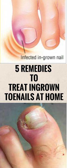 5 REMEDIES TO TREAT INGROWN TOENAILS AT HOME? ?( ..