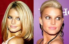 Jessica Simpson went through a period where she had some really bad lip injections. Her lips looked very bloated, puffy, and unnatural. Bad Lip Injections, Extreme Plastic Surgery, Celebrities Before And After, Celebrity Plastic Surgery, Beautiful Long Hair, Beautiful People, Aging Gracefully, Blonde Highlights, Celebrity Photos