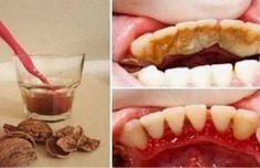 Guardé un montón de dinero del dentista desde que empecé a aplicar esta receta para limpiar mis dientes.