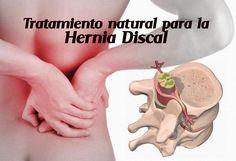 Tratamiento y prevención para la hernia discal - Vida Lúcida