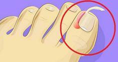 È così semplice curare le unghie incarnite a casa. Nessun bisogno di interventi! Chiunque abbia avuto a che fare con un'unghia incarnita sa bene quanto sia