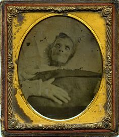 1860 - a deathbed or post-morteum photo of a cancer patient.  This is so disturbing I almost couldn't put it here!  But I've already pinned so many grotesque subjects...