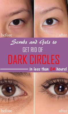 SCRUBS AND GELS FOR DARK CIRCLES