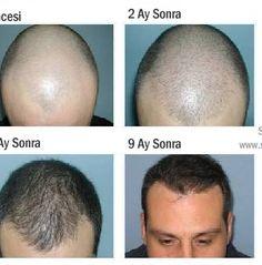 DHI Direkt Saç Ekme Tekniği