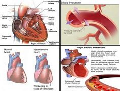 Most Effective Home Treatment for High Blood Pressure