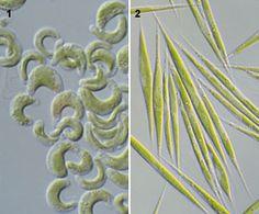 Selenastraceae 1: Pseudokirchneriella (NIES-35). 2: Monoraphidium