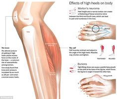 A new infographic highlights the devastating effect of women's high heel shoes on the overall health of the wearer