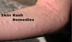 8 Best Natural Remedies for Skin Rashes