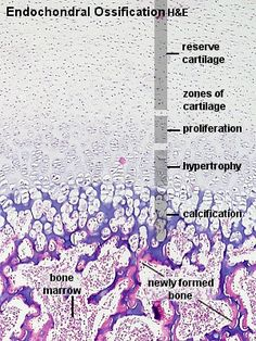 Suitable Slides: sections of the epiphyseal disc of growing bones - H&E