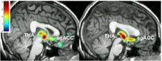 When it comes to treating depression, how well a person responds to a fake medicine may determine how well they'll respond to a real one, new research finds. Those who can muster their brain's own chemical forces against depression, it appears, have a head start in overcoming its symptoms with help from a medication. But those whose brain chemistry doesn't react as much to a fake medicine, or placebo, struggle even after getting active drug.