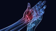 Stále sa píše len o očistení organizmu, ale čo si tak prečistiť kosti a kĺby? Je ťažké nájsť človeka, ktorý by netrpel ich bolesťami. Je jedno, čím kto trpí, pretože tieto problémy môžeme nazvať jednoducho reumatizmus, artróza alebo osteoperóza.