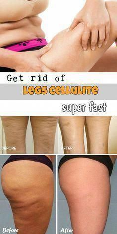 Workouts to Lose Cellulite around the Thighs #NonInvasiveCelluliteRemoval #CelluliteRemovalProcedure #Celluliteremedies Leg Cellulite, Causes Of Cellulite, Cellulite Exercises, Cellulite Remedies, Reduce Cellulite, Cellulite Workout, Aerobic Exercises, Do Exercise, Easy Workouts