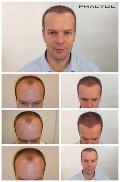 Hår Transplant af 7000 Hår- PHAEYDE Klinik Thomas havde 0% hår i tindingen zoner og nogle hår tilbage i midten af sit frontareal. Behandlingen blev udført på to dage, og de resultater, du kan se er taget 11 måneder efter hans hårtransplantation. Natural Hair Transplantation af PHAEYDE Klinik.  http://dk.phaeyde.com/har-implantation