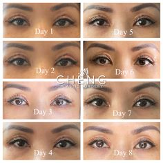 #asianeyelids #eye #eyelids #surgery #cosmetics #aesthetic #before #after #beforeandafter #beauty Double Eyelid, Eyelid Surgery, Asian Eyes, Plastic Surgery, Eyebrows, Cosmetics, Face, Beauty