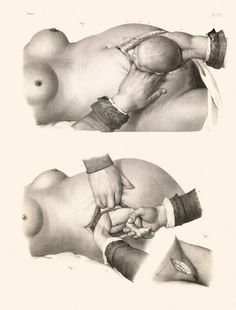 Disturbing Vintage Medical Illustrations That Will Shock You
