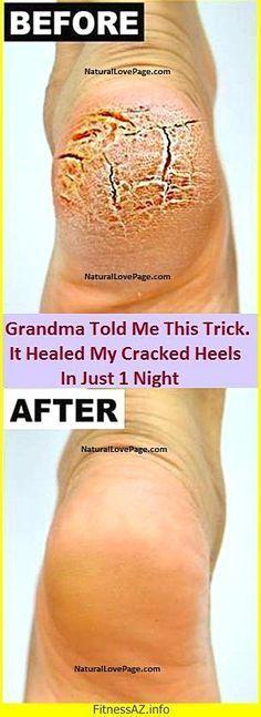 #skin #foot #Heals #fast #Cracked