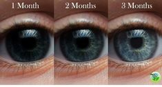 How to Use Castor Oil to Remove Cataracts and Improve Vision!