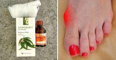 косточка на ноге лечение дома
