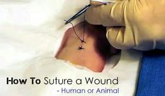 How to Suture a Wound