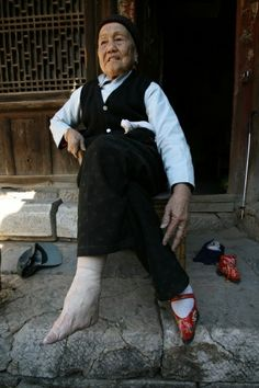 Chinese foot binding, the applying of painful tight binding to the feet of young girls, was used to stop growth of the foot. The result was considered beautiful and was called the LOTUS FOOT.