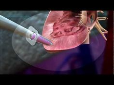 Grow organs on your own adult stem cell #MayoClinic