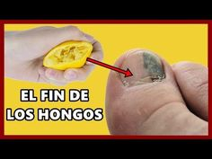 Nail Fungus Removal, Thigh Exercises For Women, Thanksgiving Desserts Easy, Free To Use Images, Vicks Vaporub, Keto Diet For Beginners, News Health, Feet Care, Health Care
