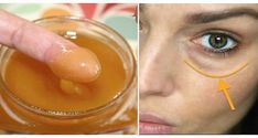 This Mixture Will Remove Dark Circles And Eye Bags In Just 15 Minutes! - - - In a list of the skin problems dark circle comes in top 5 issues. Millions of pe. Dark Circles Under Eyes, Dark Under Eye, Beauty Hacks For Teens, Natural Cures, Natural News, Natural Skin, Diy Beauty, Beauty Style, Homemade Beauty