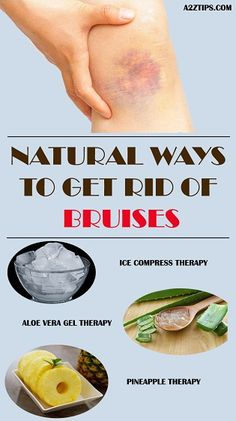 natural ways to get rid of bruises How To Remove Bruises, Heal Bruises Faster, Get Rid Of Bruise, Heal A Bruise Fast, Hair Loss Remedies, Cold Remedies, Natural Remedies, Home Remedies For Bruises, Health And Wellness