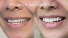 Smile makeover by cosmetic dentist Dr Trivikram.If you are the one who has been hiding your smile then read on to know how you can achieve a STUNNING SMILE MAKEOVER in less than a week. Read more http://www.allsmilesdc.org/cosmetic-dentistry/ .