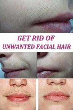 Get Rid of Unwanted Facial Hair | Remedies