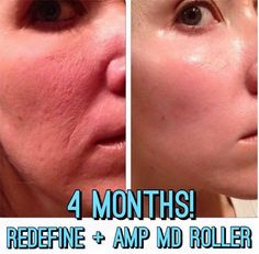 rodan and fields // regimen and lash boost bundle // rodan and fields regimen and lash boost bundle / redifinet // skin care / rodan and fields products // beauty // eyelash serum // skincare // rodan and fields skin care // products // business // rodan and fields reverse // rodan and fields redifine // acne // rodan and fields soothe // acne scars// redifine // reverse // unblemish // soothe // beauty products // AMP MD ROLLER // skin needling // amp md roller //